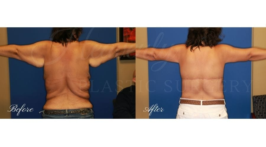 Mommy Makeover - Arm Lift, Body Lift, Breast Lift Before and After, Tummy Tuck, Abdominoplasty, Liposuction, before and after bodylift, plastic surgery, plastic surgeon, bodylift, upper body lift, breast lift