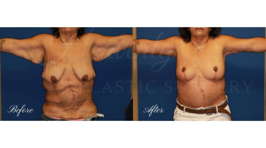 Tummy Tuck, Abdominoplasty, Liposuction, before and after bodylift, plastic surgery, plastic surgeon, bodylift, upper body lift, breast lift