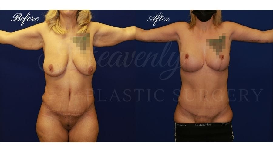Mommy Makeover - Arm LIft + Breast Lift, Before and After, Plastic Surgery, Plastic Surgeon, Tummy Tuck, Arm Lift, Breast Lift, Liposuction