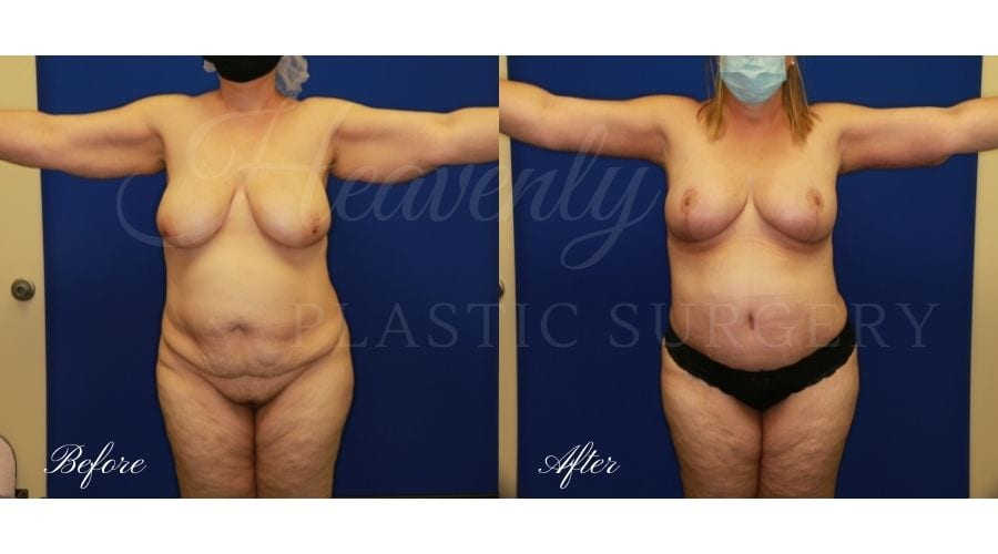 Mommy Makeover - Arm Lift + Breast Lift + Tummy Tuck, Plastic Surgery, Plastic Surgeon, Tummy Tuck, Arm Lilft, Breast Lift, Liposuction