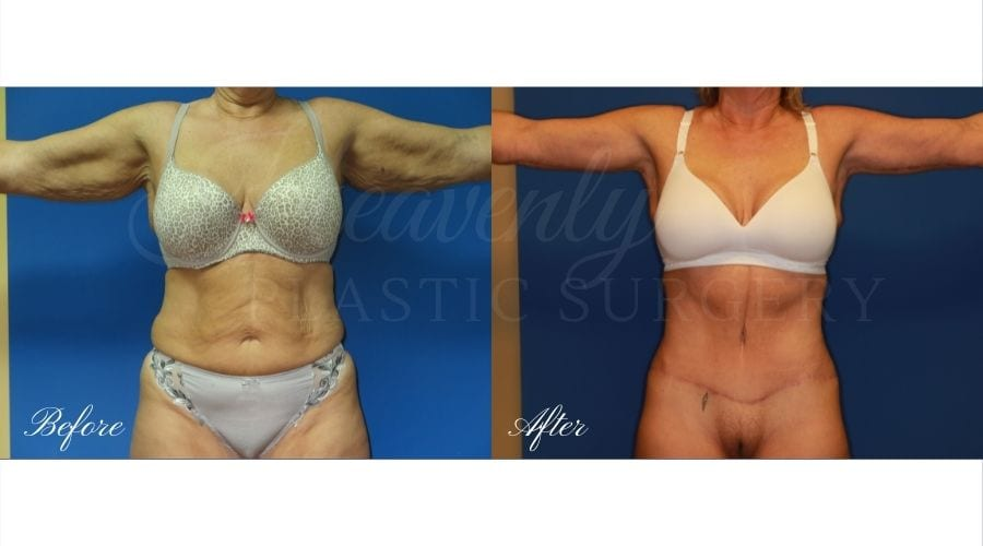 Mommy Makeover - Arm Lift + Tummy Tuck Before and After, Mommy Makeover Orange County, Mommy Makeover Surgeon, Mommy Makeover Journey, Plastic Surgery Before and After, Plastic Surgery Results, Mommy Makeover Results