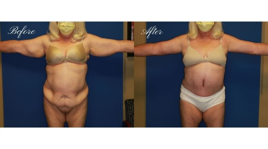 Mommy Makeover - Arm Lift + Tummy Tuck Before and After, Plastic Surgery, plastic surgeon, mommy makeover, arm lift, abdominoplasty, brachioplasty, extra skin