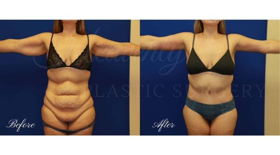 Mommy Makeover - Arm Lift + Tummy Tuck Before and After, Mommy makeover orange county, mommy makeover surgeon, mommy makeover orange county