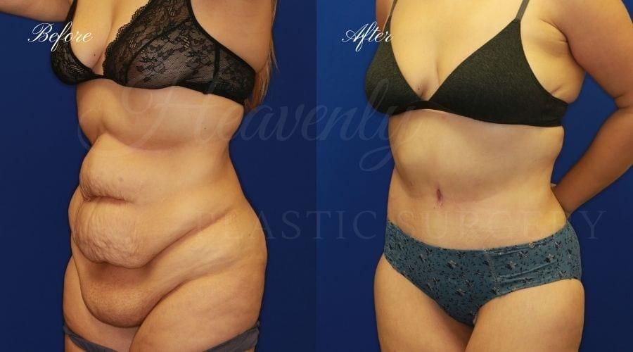 Plastic Surgery, Mommy Makeover, Tummy Tuck, Abdominoplasty, Liposuction, Arm Lift