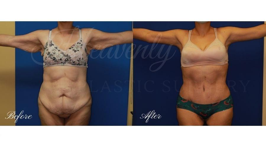 Mommy Makeover - Arm Lift + Tummy Tuck, Plastic Surgery, plastic surgeon, mommy makeover, arm lift, abdominoplasty, brachioplasty, extra skin