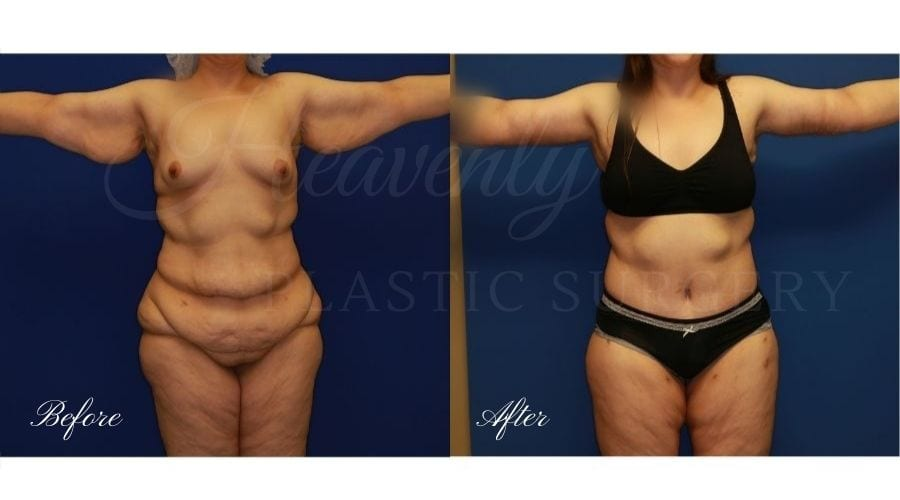Plastic Surgery, plastic surgeon, tummy tuck, abdominoplasty, weight loss, mommy makeover