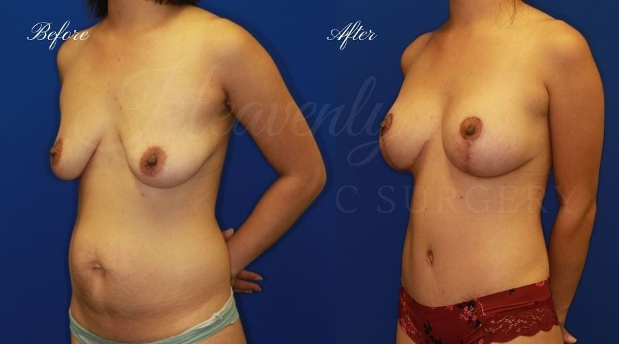 Mommy Makeover before and after, breast augmentation with lift, breast lift with implants, tummy tuck, breast lift with implants before and after, breast augmentation with lift before and after, tummy tuck before and after, abdominoplasty before and after, mommy makeover surgery, mommy makeover surgeon, mommy makeover orange county, heavenly plastic surgery mommy makeover