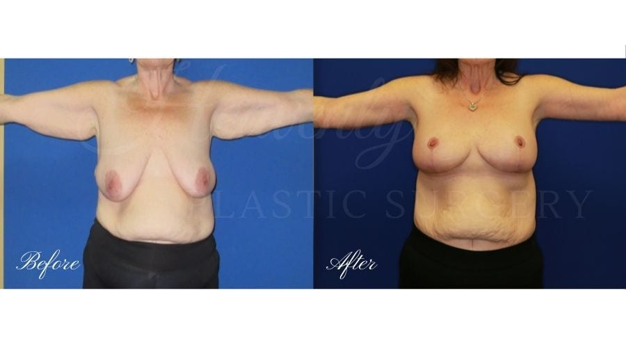 Mommy Makeover - Breast Lift + Tummy Tuck Before and After, Plastic Surgery, plastic surgeon, mastopexy augmentation, arm lift