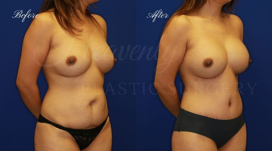 Mommy Makeover - Implant Exchange + Tummy Tuck Before and After, Mommy Makeover Orange County, Mommy Makeover Surgeon, Mommy Makeover Surgery