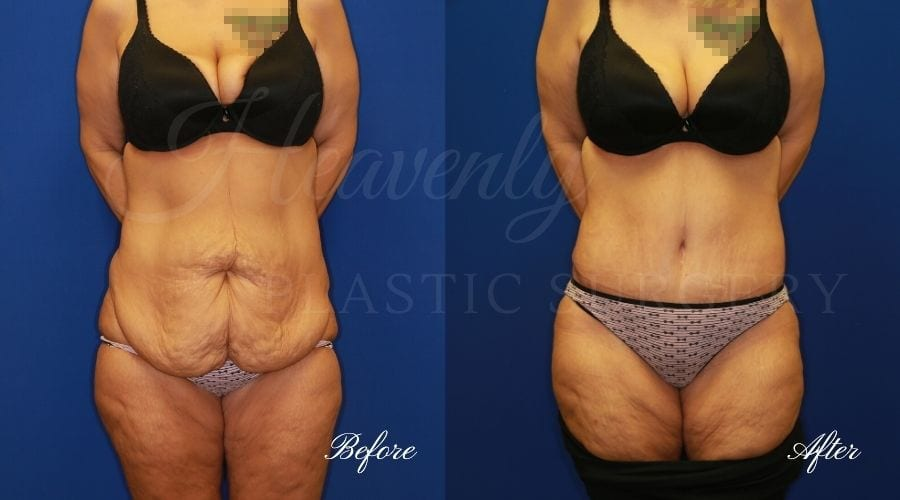 Mommy Makeover - Tummy Tuck Before and After, Plastic Surgery, Plastic Surgeon, Tummy Tuck, Arm Lift, Breast Lift, Liposuction