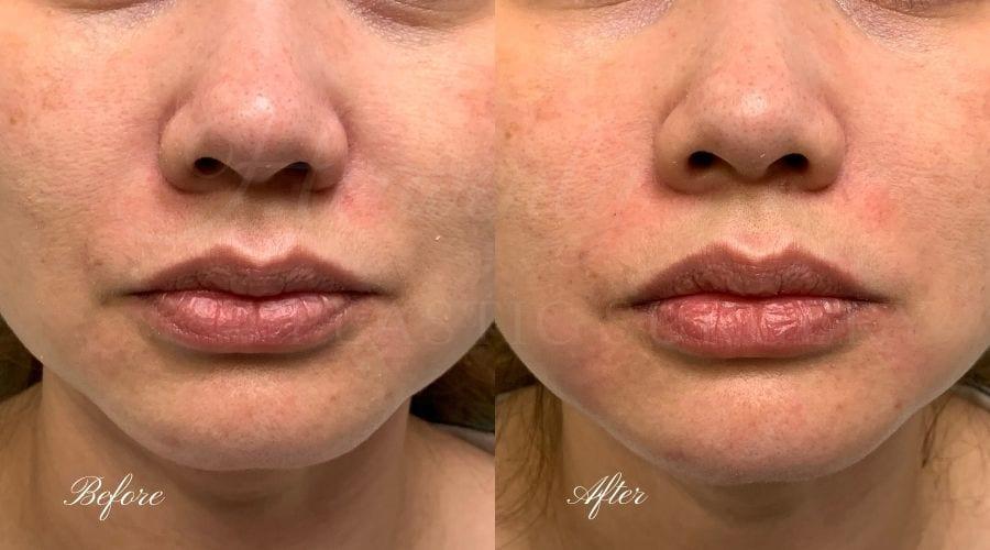 Lip filler, lip injection, juvederm, volbella, bigger lips, more lip volume, Versa, Revanesse Versa, nasolabial folds, smile lines, laugh lines