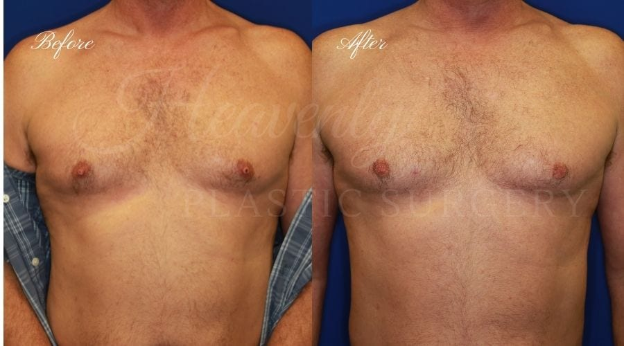 Nipple Amputation, Nipple Removal, Plastic Surgery, Plastic Surgeon, Nipple Chaffing, nipple surgery