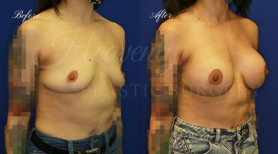 Plastic surgery, plastic surgeon, breast surgery, breast implant revision, deflated breast implant, breast augmentation correction, Secondary Breast Augmentation, Implant Exchange