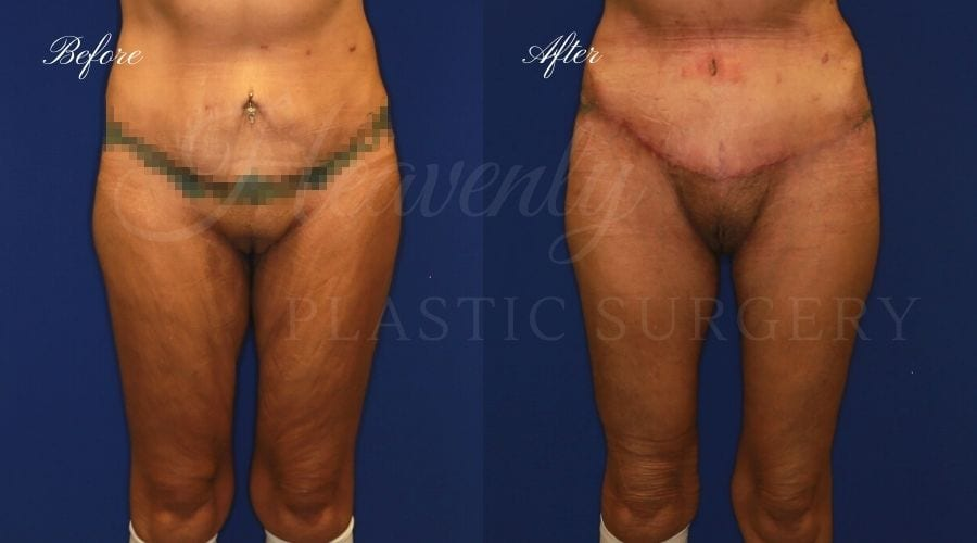 Mommy makeover, weight loss surgery, thigh lift, excess skin, thigh surgery, thigh lift before and after, tummy tuck, abdominoplasty, tummy tuck before and after, abdominoplasty before and after, mommy makeover before and after, weightloss surgery before and after, arm lift, brachioplasty, arm lift before and after, sagging skin, orange county plastic surgeon, thigh lift orange county, tummy tuck orange county, arm lift orange county