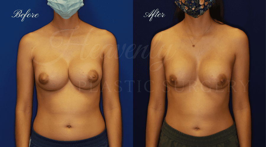 Uniboob Correction Implant Exchange Before and After, Plastic Surgery, Plastic Surgeon, Breast Implant Exchange, Implant Exchange, Breast Implant Revision