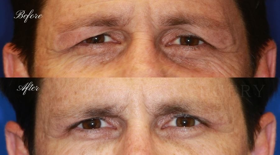Plastic surgeon, plastic surgery, upper blepharoplasty, eyelid surgery, upper eyelid, upper eyelid surgery, upper blepharoplasty, upper bleph