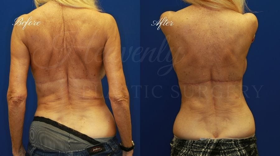 back lift surgery, back lift, back lift surgeon, weight loss surgeon, back surgery, back lift before and after, back lift orange county