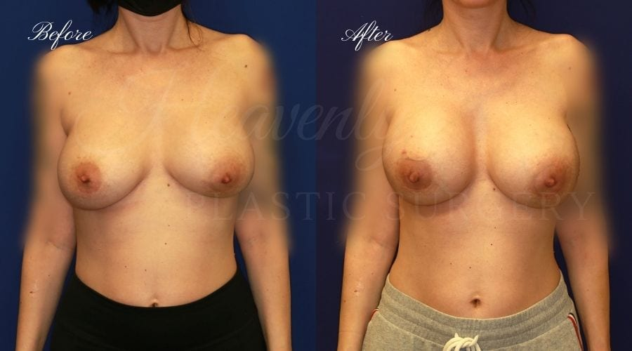 Plastic surgery, plastic surgeon, breast surgery, breast implant revision, deflated breast implant, breast augmentation correction