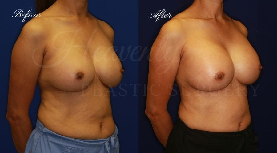 Plastic surgery, plastic surgeon, breast surgery, breast implant revision, deflated breast implant, breast augmentation correction, implant exchange, breast implants, implant exchange, breast implant exchange
