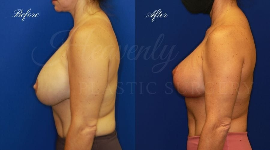Breast Implant Exchange and Breast Lift - 310cc SRM Silicone Implants with Wise pattern Mastopexy (Anchor Scar)