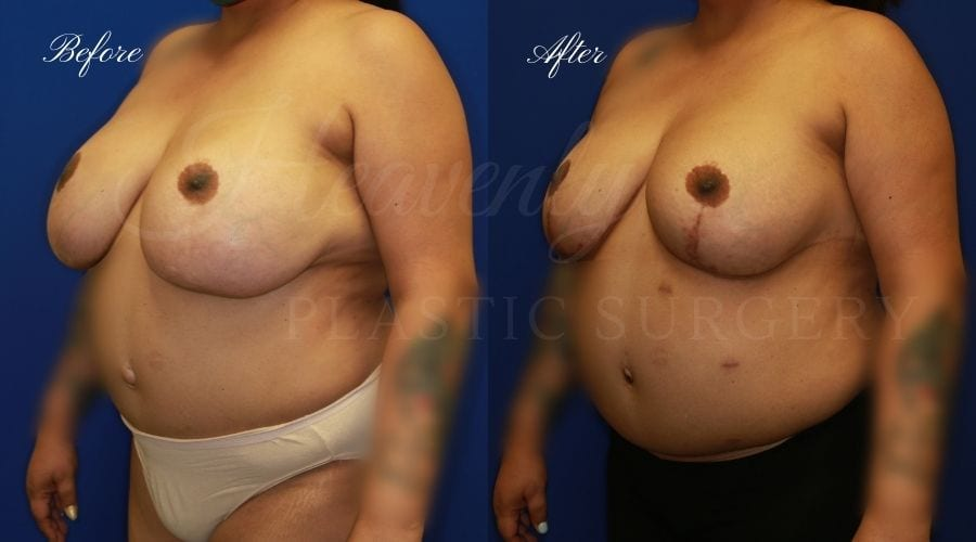 Implant Exchange + Breast Lift Before and After -, Plastic Surgery, Plastic Surgeon, Breast Implant Exchange with Breast LIft, Breast Surgery, Breast surgery before and after, breast implant exchange with lift before and after, plastic surgery orange county, plastic surgeon orange county