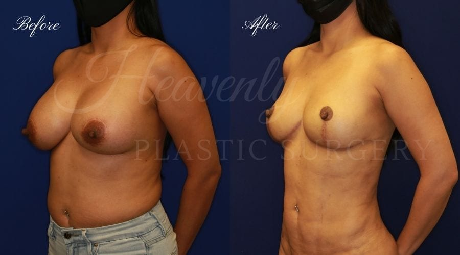 Breast Implant Removal + Breast Lift, Explant and Breast Lift, Breast Explant, Mastopexy, IMplant removal and mastopexy, plastic surgery before and after, plastic surgery revision, implant removal before and after, breast implant removal before and after, breast implant removal surgeon, breast implant removal orange county