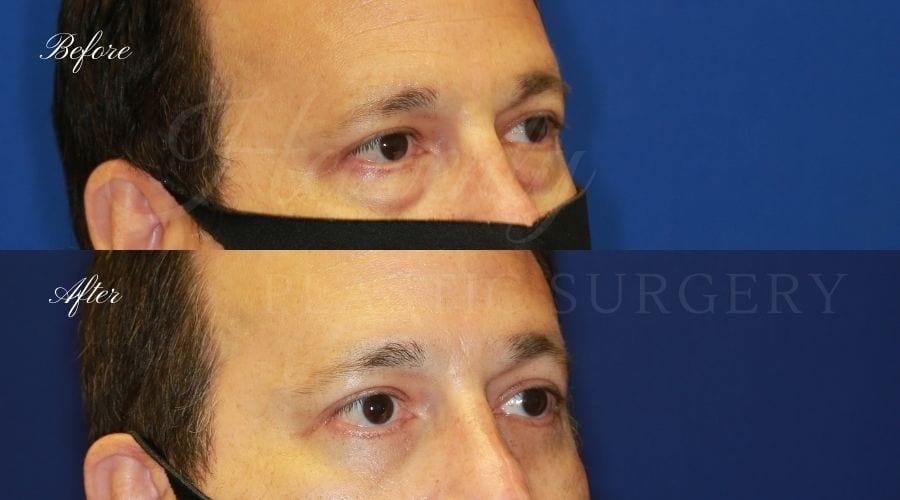 Plastic surgeon, plastic surgery, upper blepharoplasty, eyelid surgery, lower blepharoplasty, droopy eyelids