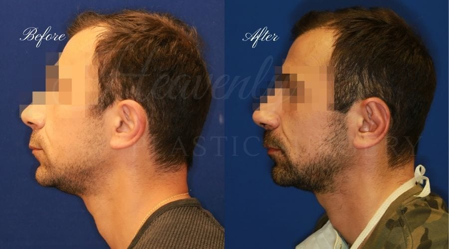Otoplasty Before and After, Otoplasty results, ear pinning surgery, ear pinning before and after, ear pinning results, otoplasty surgeon, otoplasty surgery, otoplasty orange county, ear pinning surgeon, ear surgery