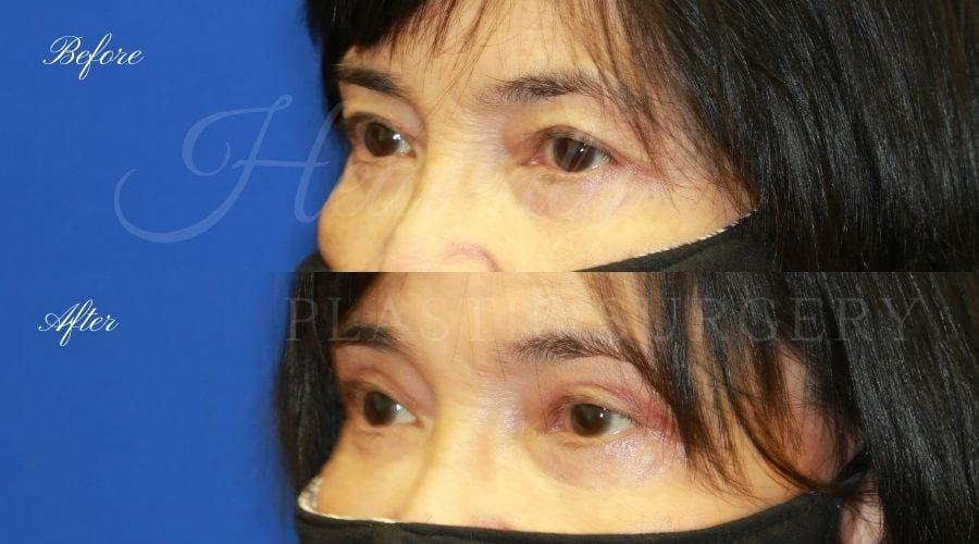 Plastic surgeon, plastic surgery, upper blepharoplasty, eyelid surgery