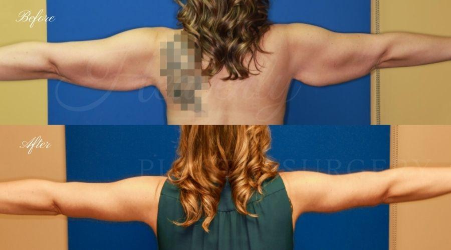 Plastic Surgery, Liposuction, Arm Lift, Brachioplasty, arms, bat wings