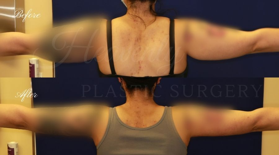Arm Lift Brachioplasty Before and After - Back VEHE