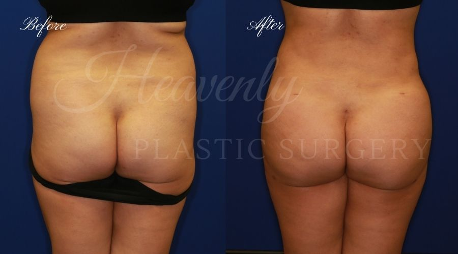 Heavenly Plastic Surgery, Plastic Surgery, Plastic Surgeon, Liposuction, Abdominal Liposuction, Lipo 360, Liposuction 360, BBL, Brazilian Butt Lift, Fat Transfer