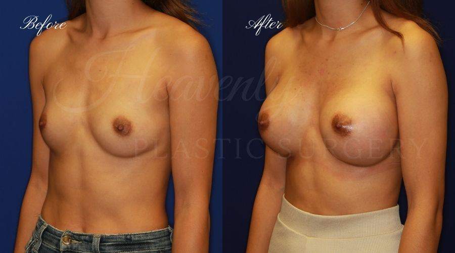 breast augmentation before and after, breast augmentation results, breast augmentation surgery, breast implants before and after, breast implants results, plastic surgery before and after, plastic surgery results, plastic surgeon, breast surgeon, breast augmentation surgeon, breast implant surgeon, breast implants orange county, breast augmentation orange county, orange county plastic surgeon, plastic surgery check