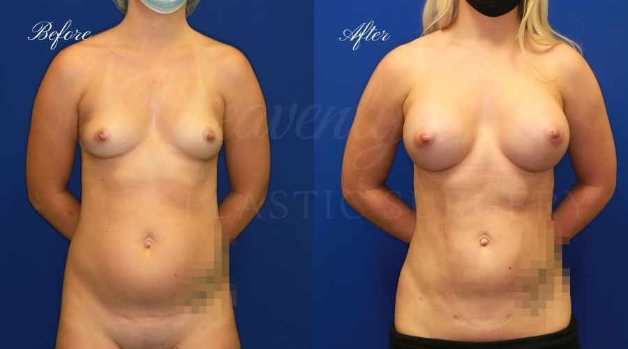 breast augmentation before and after, breast augmentation results, breast augmentation surgery, breast implants before and after, breast implants results, plastic surgery before and after, plastic surgery results, plastic surgeon, breast surgeon, breast augmentation surgeon, breast implant surgeon, breast implants orange county, breast augmentation orange county, orange county plastic surgeon, plastic surgery check, liposuction results, liposuction before and after, lipoetchin g before and after, liposuction orange county, liposuction surgeon, liposuction 360, liposuction 360 orange county, liposuction 360 surgeon