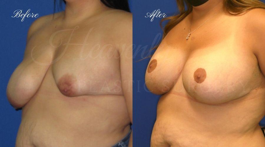 Mastopexy Augmentatio, Breast Implants with Lift, Silicone breast implants with Wise-pattern breast lift (Anchor scar), plastic surgery, plastic surgeon, orange county, lake forest, sagging