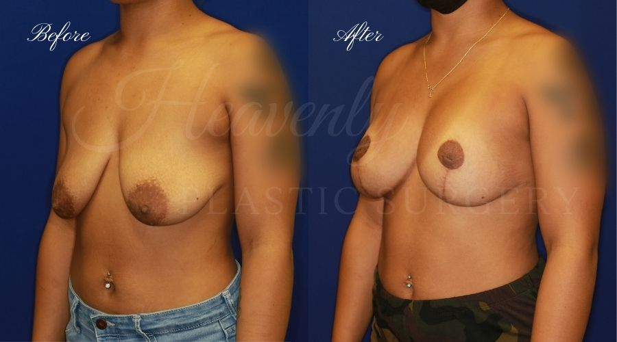 Breast Lift with Implants (Mastopexy-Augmentation) Before and After, Plastic surgery, plastic surgeon, breast augmentation, breast lift, breast implants, mastopexy, mastoaug, mastopexy-augmentation, before and after, mastopexy augmentation, breast lift with implants