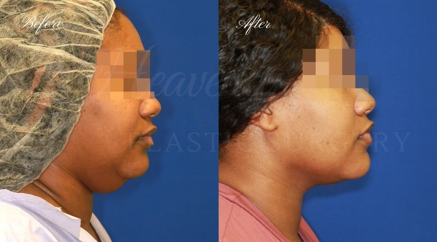 Chin liposuction, liposuction before and after, chin liposuction before and after, chin lipo, jawline surgery, jawline procedure, jawline before and after, chin before and after, plastic surgery before and after, chin liposuction surgeon, liposuction surgeon, plastic surgeon, face surgeon, plastic surgery orange county, chin liposuction orange county, chin lipo orange county, liposuction orange county, medspa orange county, plastic surgery orange county, best plastic surgeon orange county, lake forest plastic surgery, face plastic surgery, face before and after, plastic surgery check