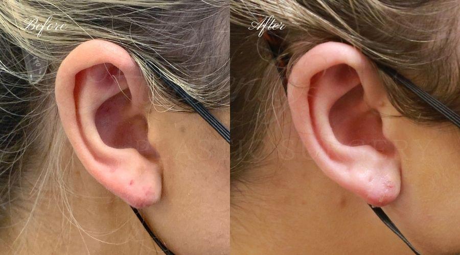 Earlobe repair, earlobe repair surgery, earlobe repair surgeon, torn earlobe surgery, torn earlobe surgeon, close piercing surgeon, close piercing surgery, piercing repair