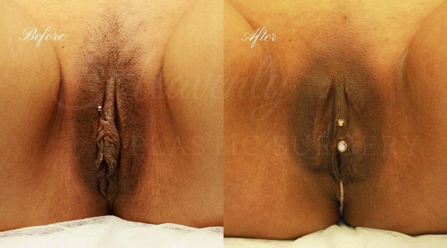 Labiaplasty, vaginal surgery, vaginal rejuvenation, vaginal reconstruction, vaginal rejuvination, labiaplasty orange county, labiaplasty surgery, labia minora, labia majora
