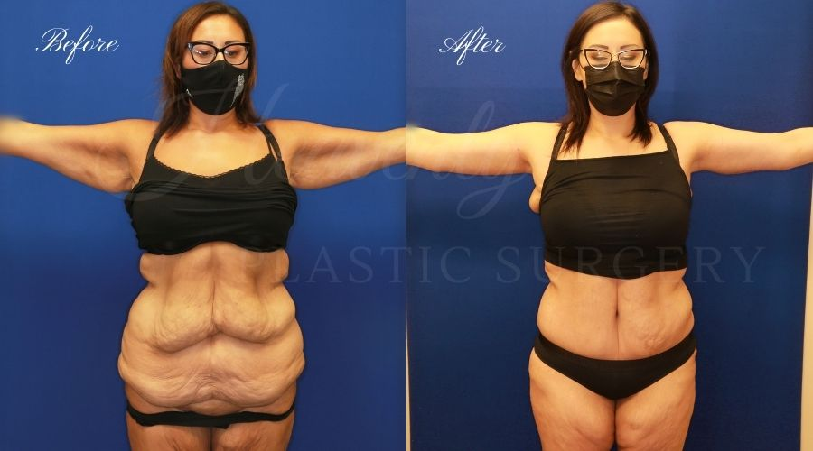 Plastic Surgery, plastic surgeon, mommy makeover, arm lift, abdominoplasty, brachioplasty, extra skin