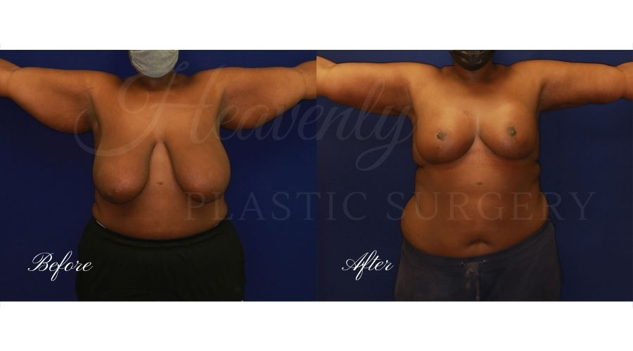 Mommy makeover before and after, breast lift before and after, arm lift before and after, breast reduction before and after, breast lift surgeon, mommy makeover surgeon, arm lift surgeon, plastic surgery, plastic surgeon, breast plastic surgery, arm plastic surgery, mommy makeover orange county, arm lift orange county, breast lift orange county, plastic surgeon orange county