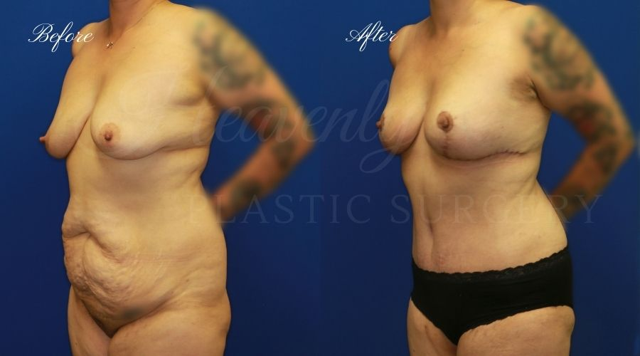 mommy makeover surgery, mommy makeover before and after, tummy tuck before and after, breast lift before and after, tummy tuck surgeon, breast lift surgeon, mommy makeover surgeon, tummy tuck orange county, breast lift orange county, mommy makeover before and after