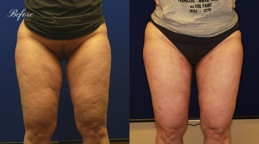 Thigh Liposuction Before and After - Front WEKO