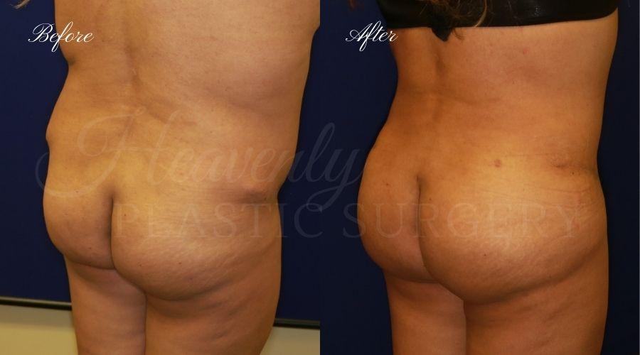 BBL Orange county, brazilian butt lift orange county, brazilian butt lift before and after, brazilian butt lift surgeon, brazilian butt lift results, bbl surgeon, bbl results, bbl before and after, fat transfer to the butt, butt augmentation, butt augmentation surgery, butt augmentation surgeon