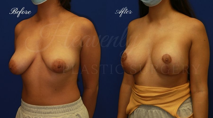 breast augmentation with breast lift, mastopexy augmentation, mastopexy augmentation surgery, breast lift surgery, breast augmentation surgery, breast lift before and after, breast lift results, breast augmentation results, breast augmentation, before and after