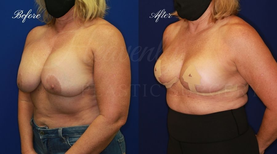 explant surgery, breast implant removal, breast implant removal surgery, implant removal, breast implant removal and breast lift, breast lift, breast lift surgery, explant before and after, implant removal before and after, implant removal surgeon, breast implant removal surgeon, breast implant removal orange county, breast lift surgeon