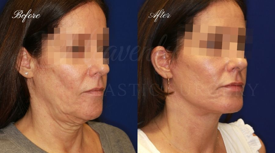 face lift, neck lift, face lift before and after, neck lift before and after, face lift surgeon, facelift, neck lift surgeon, face plastic surgeon, palstic surgeon, facelift orange county, face lift orange county, neck lift orange county, lower face lift, lower face lift orange county, neck lift orange county, orange county plastic surgeon, orange county plastic surgery