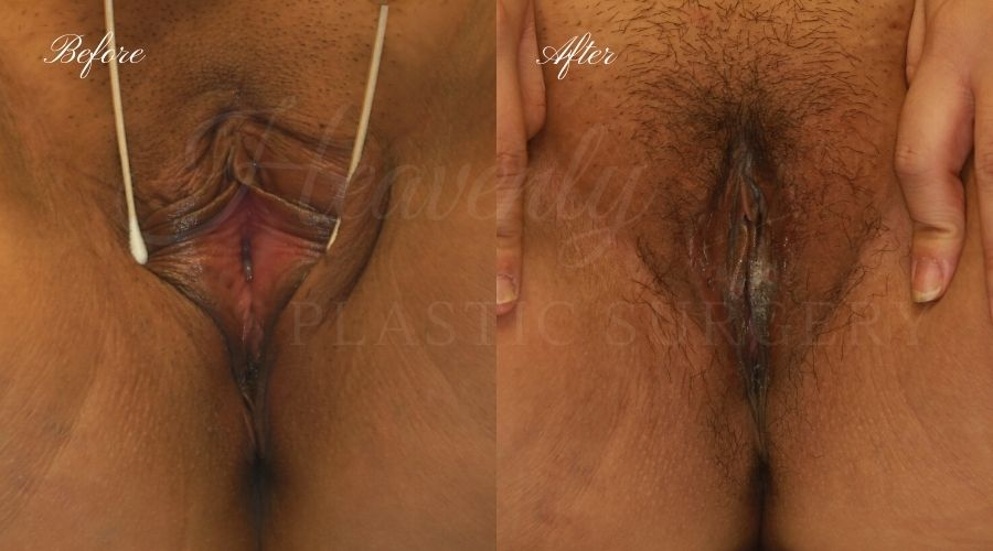 labiaplasty before and after, vagina skin surgery before and after, extra labia skin, vagina surgery before and after, labiaplasty orange county, labiaplasty los angeles, labiaplasty surgeon, labiaplasty near me, vaginal rejuvination