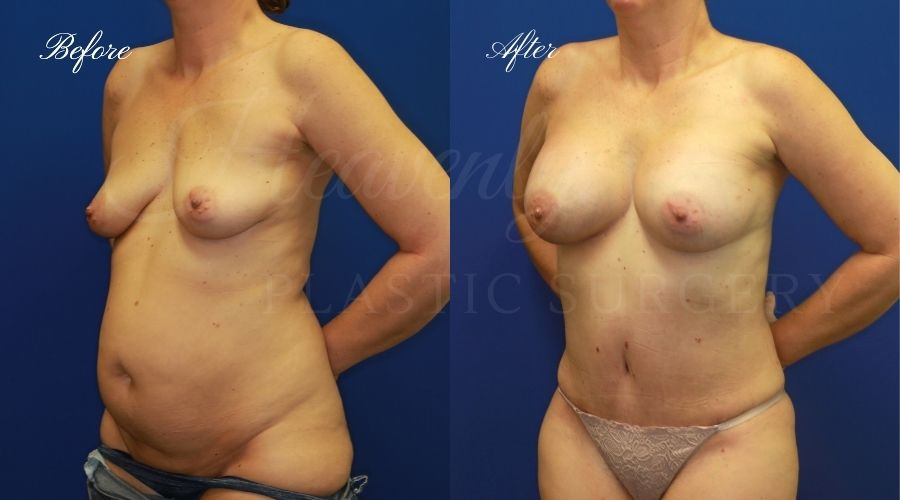 Mommy makeover before and after, breast augmentation before and after, tummy tuck before and after, mommy makeover results, mommy makeover surgeon, breast augmentation surgeon, breast implant surgeon, breast implant surgery, tummy tuck surgeon, abdominoplasty, abdominoplasty surgeon, orange county plastic surgeon, breast implants orange county, tummy tuck orange county, orange county plastic surgeon