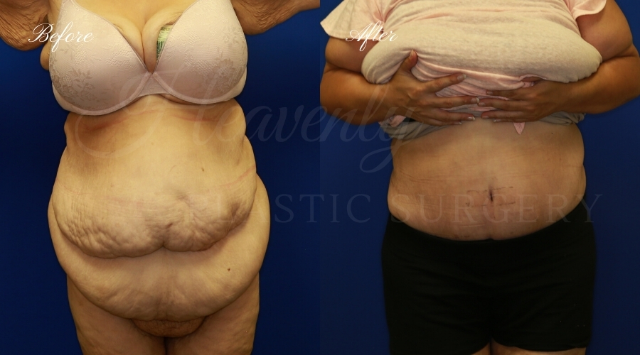 extended tummy tuck before and after, tummy tuck before and after, extended tummy tuck, large tummy tuck, plus sized tummy tuck, large tummy tuck before and after, tummy tuck surgeon, tummy tuck surgery, abdominoplasty, large abdominoplasty, weight loss surgery, weight loss tummy tuck,plastic surgery transformation
